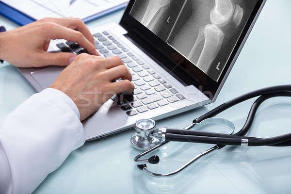 Médico joelho raio x laptop médicos Foto stock © AndreyPopov