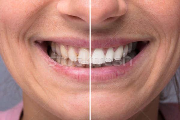 人 歯 ホワイトニング クローズアップ 詳細 ストックフォト © AndreyPopov