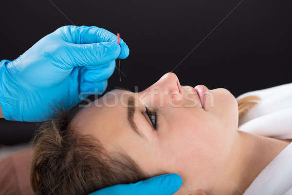 Mano acupuntura aguja frente primer plano persona Foto stock © AndreyPopov