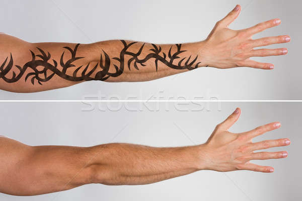 Laser Tattoo Removal Before And After Stock photo © AndreyPopov