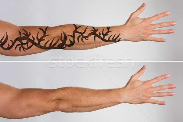 Laser tattoo verwijdering aantrekkelijk hand behandeling Stockfoto © AndreyPopov