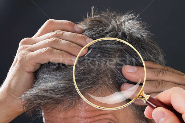 Dermatologist Checking Patient's Hair Stock photo © AndreyPopov