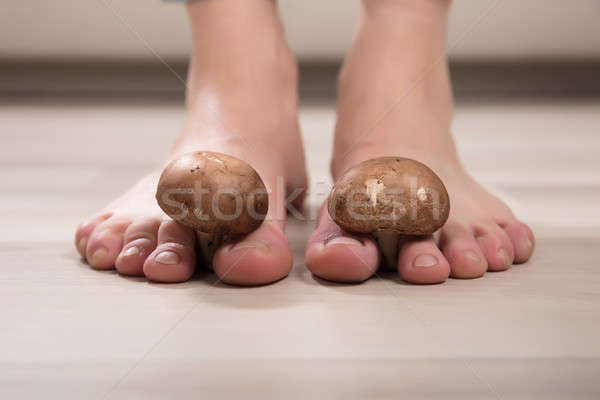 Stock photo: Mushrooms Between Woman's Toes