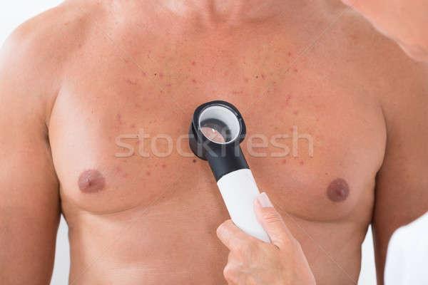 Doctor's Hand Examining Acne Skin Of Man With Dermatoscope Stock photo © AndreyPopov
