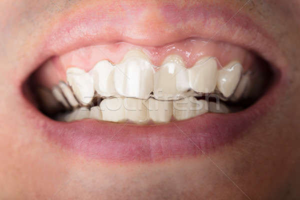 Man Wearing Transparent Teeth Aligners Stock photo © AndreyPopov