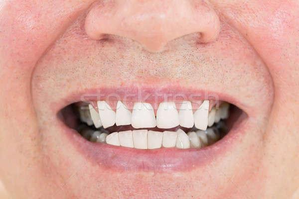 Senior Man Showing His Teeth Stock photo © AndreyPopov