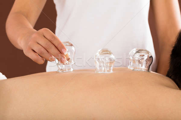 Therapist Placing Cups On Person's Back Stock photo © AndreyPopov