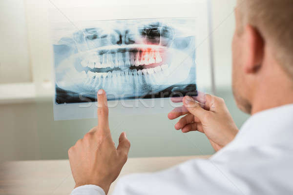 Male Doctor With X-ray Stock photo © AndreyPopov