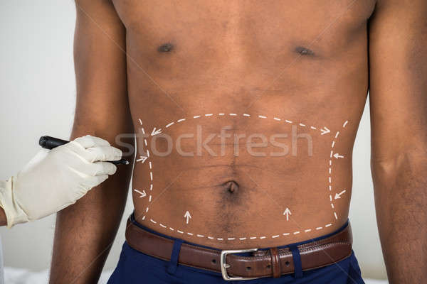 Person's Hand Drawing Correction Lines On Abdomen Of Man Stock photo © AndreyPopov