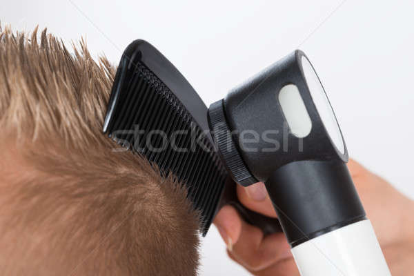 Doctor Examining Patient's Hair Through Dermatoscope Stock photo © AndreyPopov