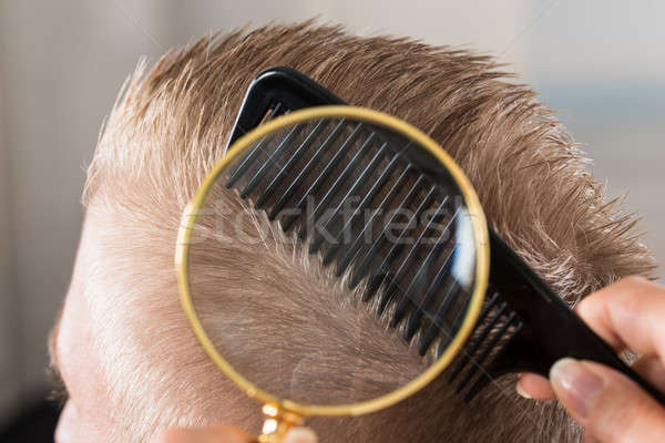 Doctor Looking At Patient's Hair Through Magnifying Glass Stock photo © AndreyPopov