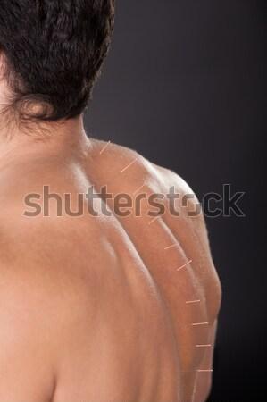 Hombre acupuntura agujas atrás primer plano sin camisa Foto stock © AndreyPopov