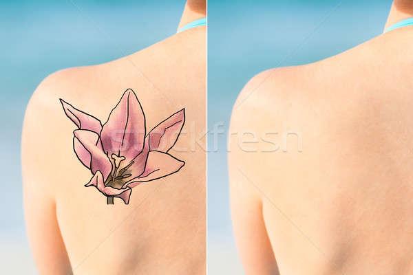 Persona laser tattoo rimozione trattamento Foto d'archivio © AndreyPopov