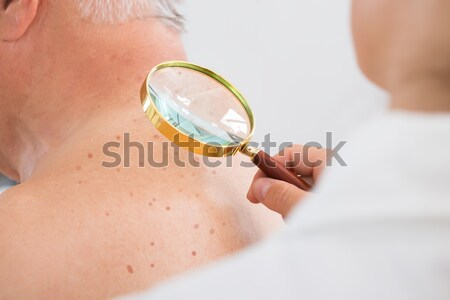 Woman Holding Magnifying Glass Looking At Skin Stock photo © AndreyPopov