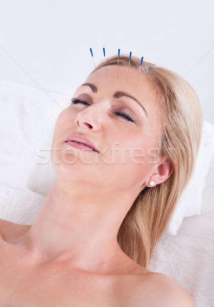 Stockfoto: Acupunctuur · therapie · spa · centrum · detail · vrouw