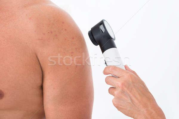 Arts acne huid man persoon Stockfoto © AndreyPopov