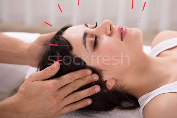 Foto stock: Mujer · acupuntura · tratamiento