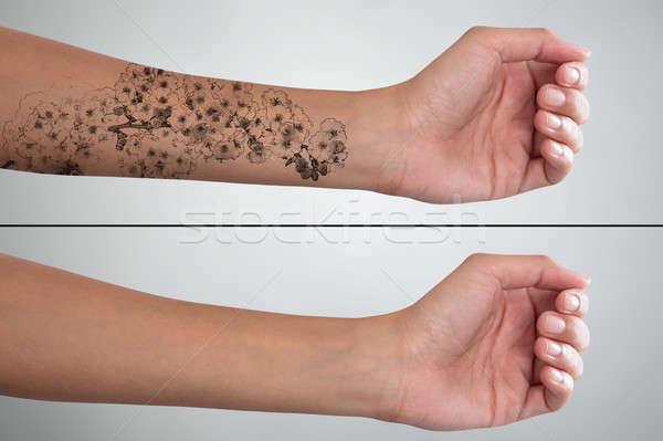 стороны лазерного татуировка удаление лечение Сток-фото © AndreyPopov