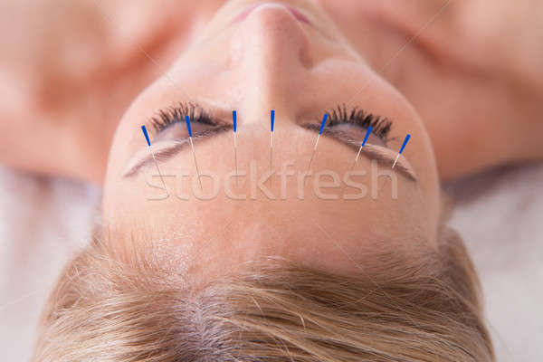 Stock photo: Woman Receiving An Acupuncture Needle Therapy