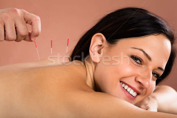 Young Woman Receiving Acupuncture Treatment In Spa Stock photo © AndreyPopov