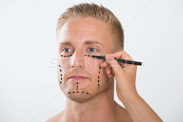 Man With Correction Mark For Plastic Surgery Stock photo © AndreyPopov