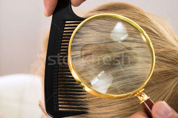 Dermatologue regarder cheveux blonds loupe femme Photo stock © AndreyPopov