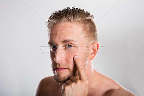 Uomo brufolo faccia acne pelle problema Foto d'archivio © AndreyPopov