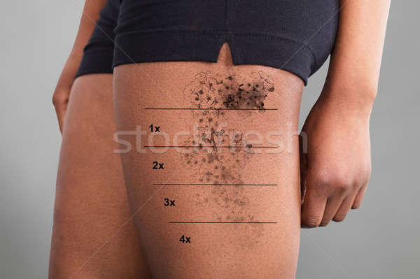 Laser Tattoo Removal On Woman's Thigh Stock photo © AndreyPopov