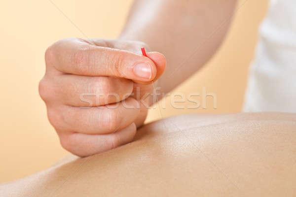 Terapist akupunktur tedavi kadın spa Stok fotoğraf © AndreyPopov