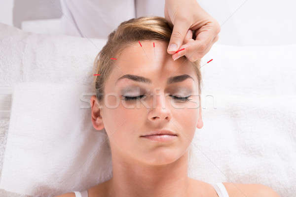 Hand Performing Acupuncture Therapy On Patient's Head Stock photo © AndreyPopov
