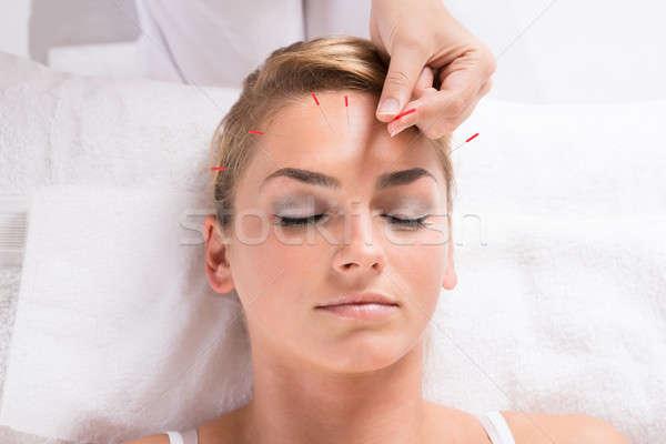 Hand acupunctuur therapie hoofd Stockfoto © AndreyPopov