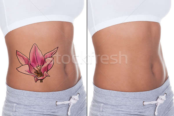 Woman Before And After Laser Tattoo Removal Treatment Stock photo © AndreyPopov