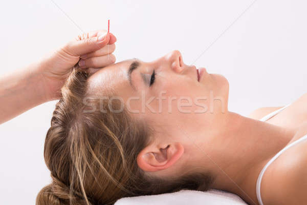 Hand Performing Acupuncture Therapy On Head Stock photo © AndreyPopov