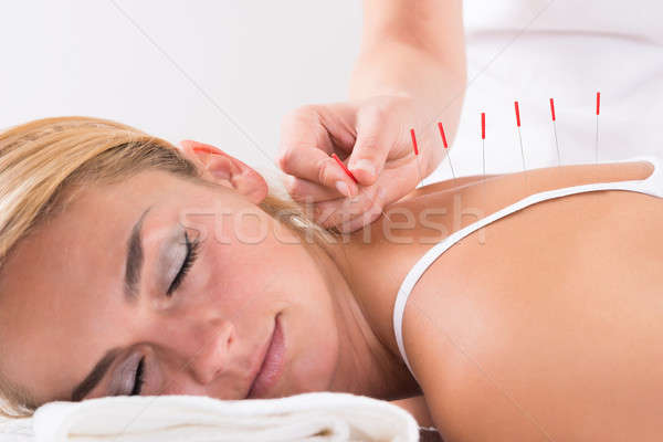 Hand Performing Acupuncture Therapy On Customer's Back Stock photo © AndreyPopov