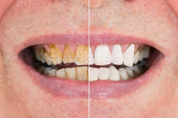 Férfi fogak fehérítés közelkép részlet mosoly Stock fotó © AndreyPopov