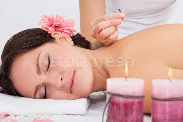 Kadın akupunktur tedavi genç kadın masaj tablo Stok fotoğraf © AndreyPopov