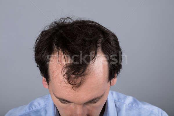 Férfi haj veszteség közelkép fej egészség Stock fotó © AndreyPopov