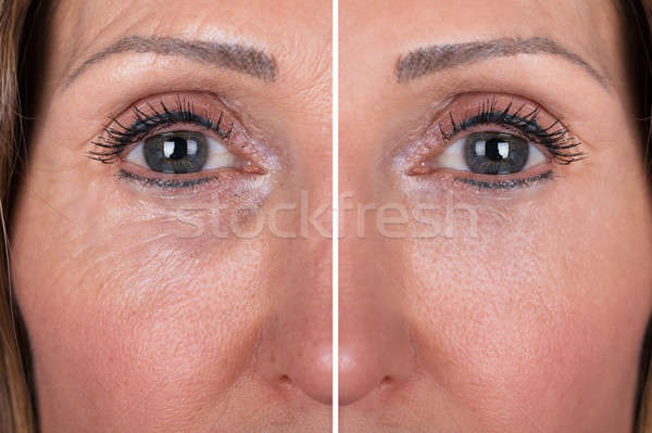 Woman With Before And After Rejuvenation Stock photo © AndreyPopov