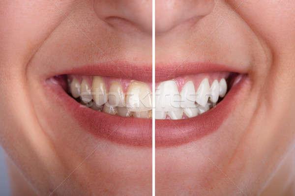 歯 ホワイトニング クローズアップ 笑みを浮かべて 女性 笑顔 ストックフォト © AndreyPopov