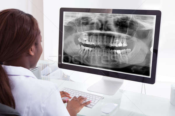 Female dentist examining jaw Xray on computer in clinic Stock photo © AndreyPopov