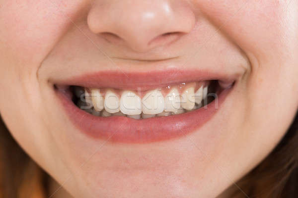 Female Smiling With Healthy White Teeth Stock photo © AndreyPopov