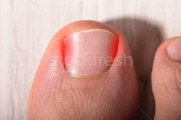 Close-up Sore Toe Nail Stock photo © AndreyPopov