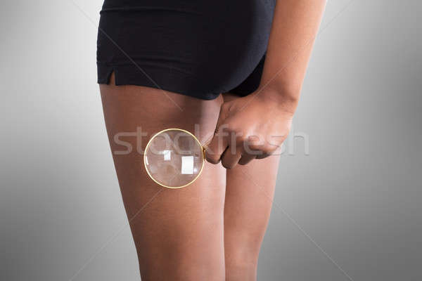 Femme cellulite cuisse loupe main Photo stock © AndreyPopov
