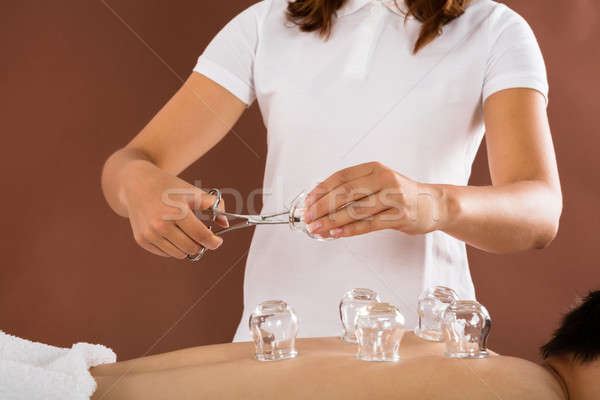 Therapist Giving Cupping Therapy To Man Stock photo © AndreyPopov