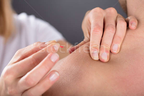Hand Putting Acupuncture Needle On Man's Shoulder Stock photo © AndreyPopov