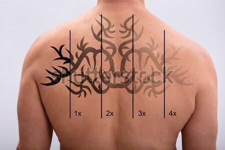 Tetoválás eltávolítás hát lézer fehér nő Stock fotó © AndreyPopov