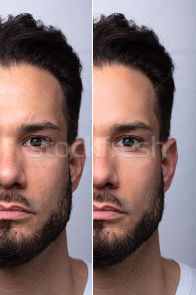Man's Face Before And After Cosmetic Procedure Stock photo © AndreyPopov