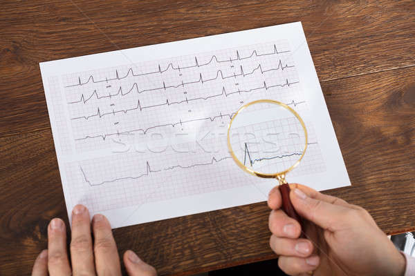 Person Using Magnifying Glass On Cardiogram Chart Stock photo © AndreyPopov