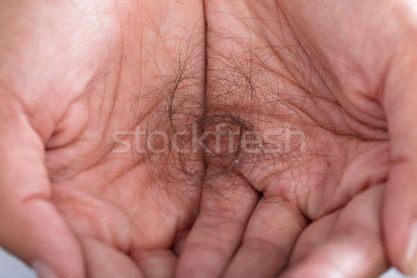 Hair Loss In Person Hand Stock photo © AndreyPopov