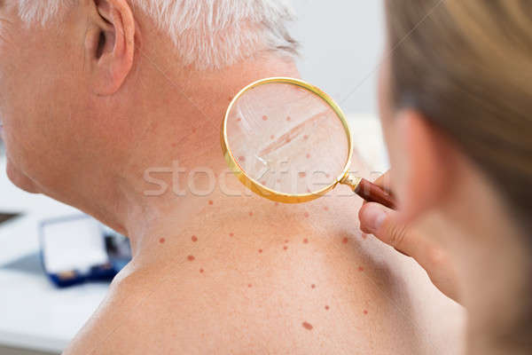 Doctor Checking Skin Of Patient With Magnifying Glass Stock photo © AndreyPopov